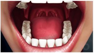 cirugia maxilo 3 mejor quiza